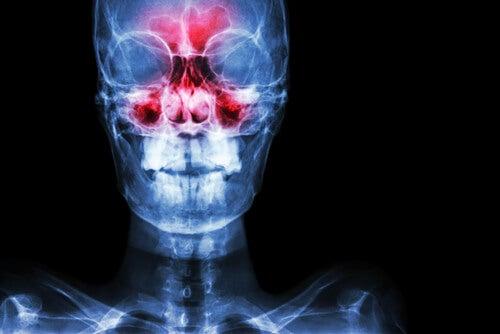 축농증의 원인 및 증상 그리고 치료 방법