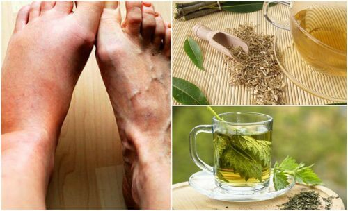 5 Home Remedies to Lower Your Uric Acid Levels