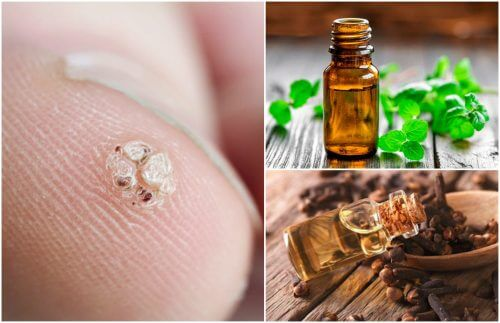 Seven Essential Oils to Try if You Have Warts