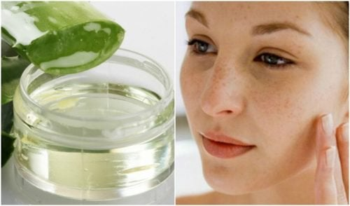 Reduce Stretch marks, Scars and Blemishes with this Home Remedy
