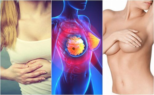 9 Symptoms of Breast Cancer All Women Should Know