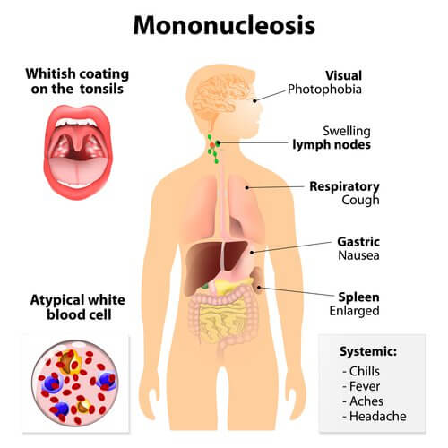 Symptoms of mononucleosis