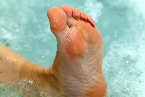 A foot in water with athletes foot.