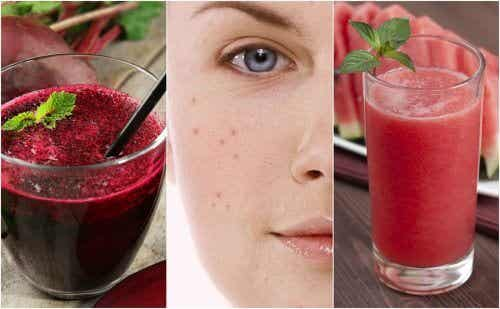 Fight Acne by Adding these 5 Detox Smoothies to Your Diet