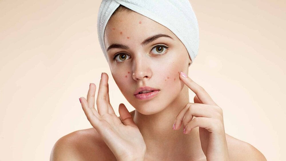 woman treating her acne with apple cider vinegar beauty secrets