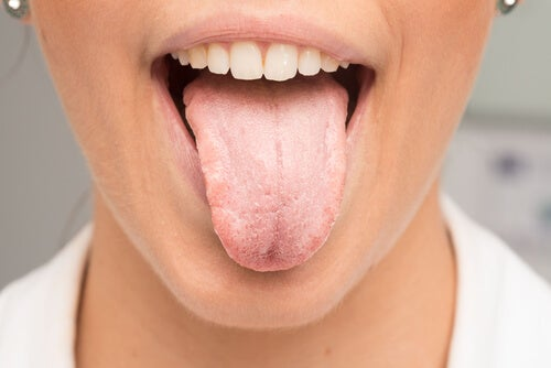 remove tongue whiteness