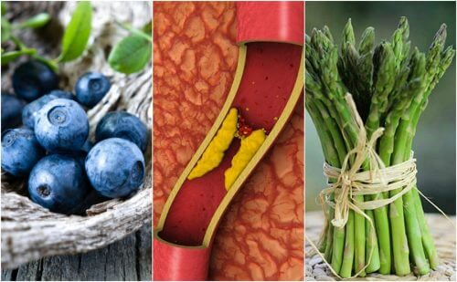 Prevent Arterial Blockage by Eating More of These 7 Foods
