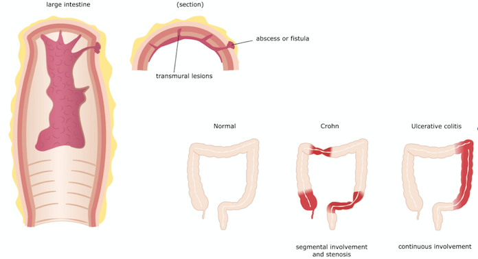 Illustration of the colon