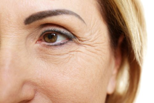 Did You Know that Crow's Feet Mean Something and You Can Prevent Them?