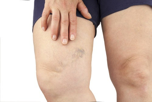 A person with fluid retention in their thigh.