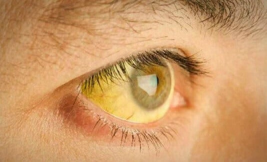 Yellow skin and eyes due to liver malfunction
