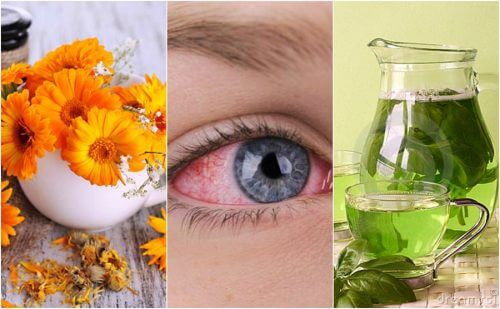 Relieve Pink Eye with 5 Natural Remedies