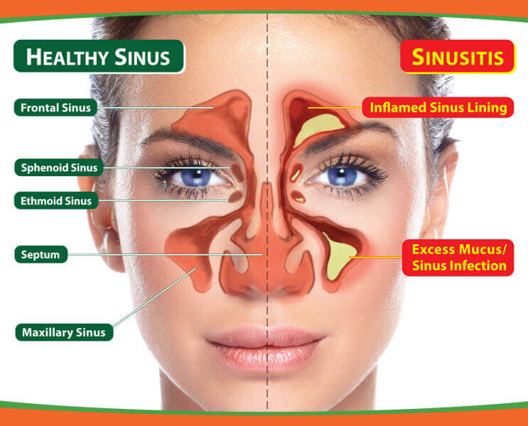 Sinusitis Symptoms: From Origin to Diagnosis