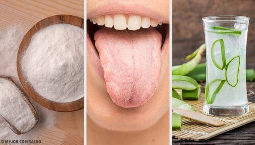 Tongue Whiteness is Solved with 8 Natural Remedies