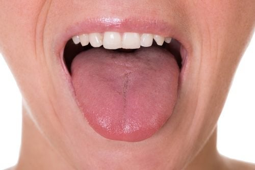 5 Possible Symptoms of Tongue Cancer