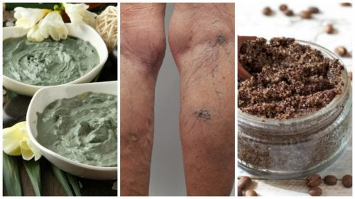 Get Rid of Varicose Veins the Natural Way with these Homemade Remedies