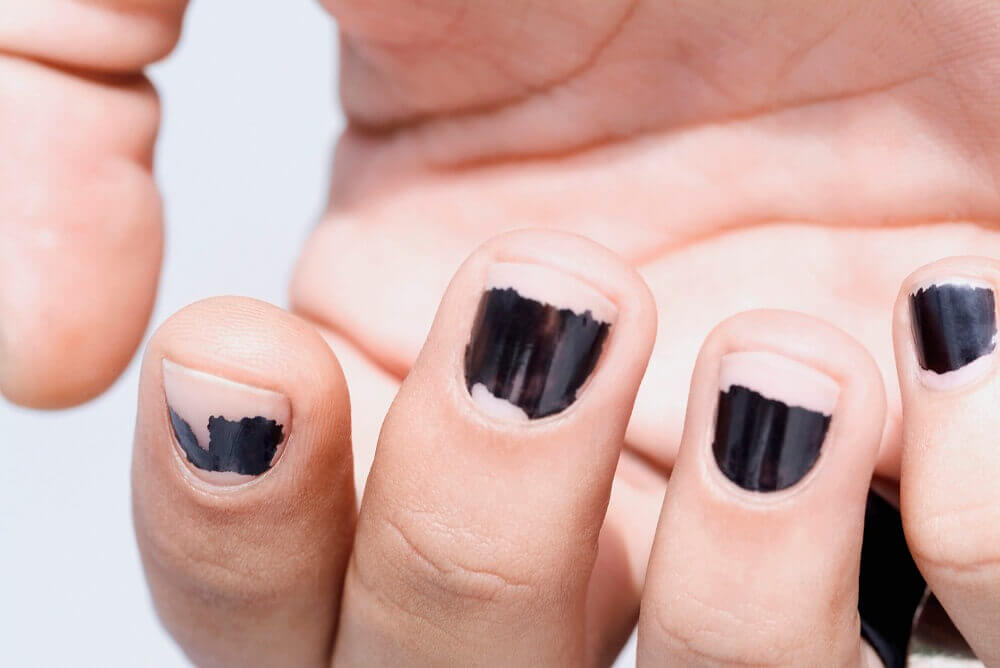 Inappropriate removal of nail polish can be a cause of brittle nails