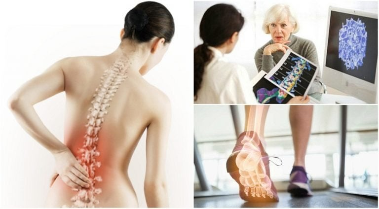 6 Facts You Should Know About Osteoporosis