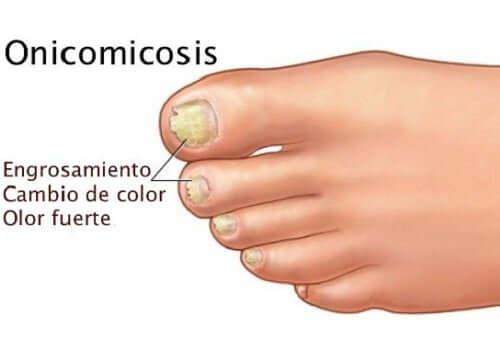 A diagram of nail fungus.