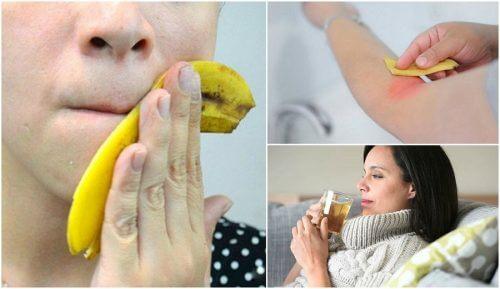 8 Fascinating Ways to Use Banana Skins