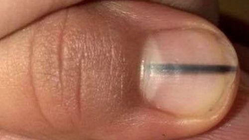 How a Black Line on Your Nails Can Signal Cancer