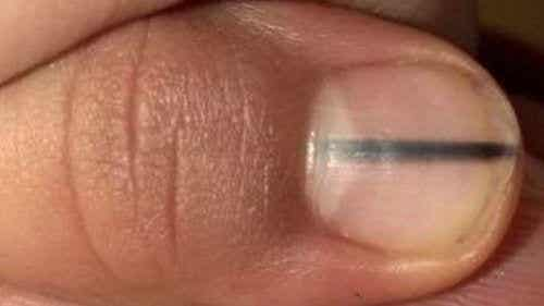 A Black Line on Your Nails Could Be a Sign of Cancer
