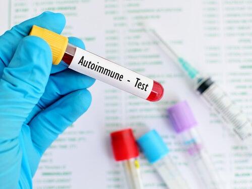 Autoimmune-test
