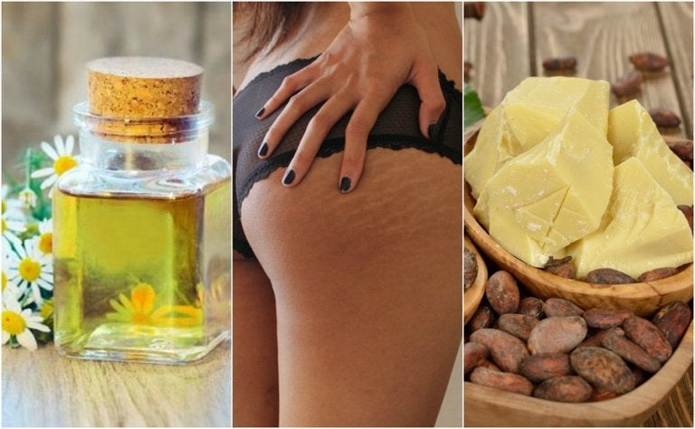 Reduce Stretch Marks with These 5 Home Remedies