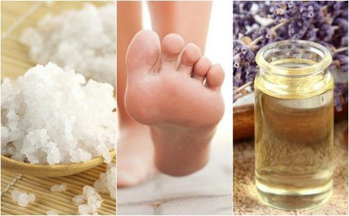 5 Home Remedies for Plantar Fasciitis