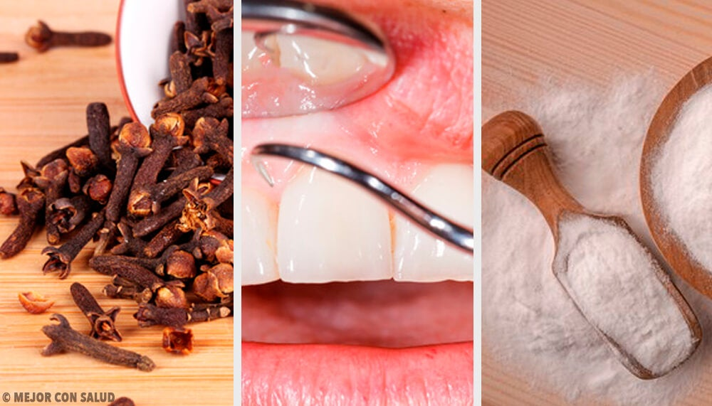 Get Rid of Inflamed Gums with These Natural Remedies