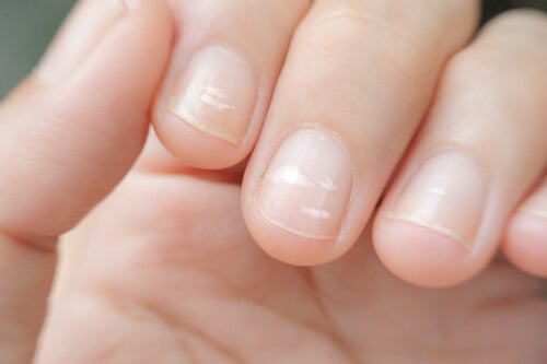 A woman with fingernail ridges.