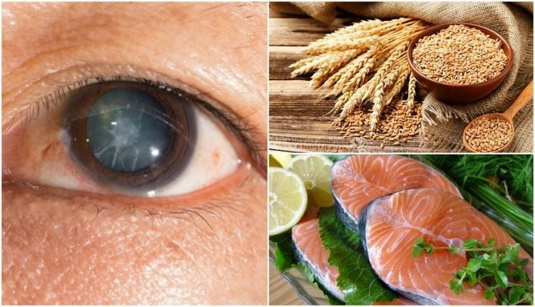 Reduce the Risk of Cataracts by Eating These 7 Foods