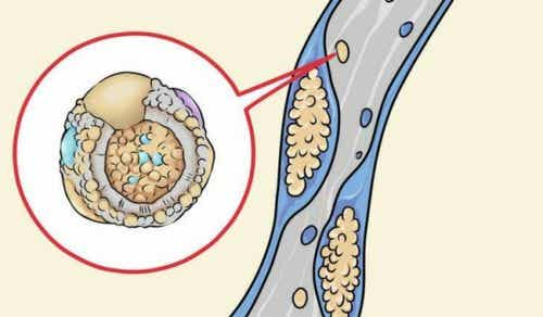 5 Foods to Clean Your Arteries The Natural Way