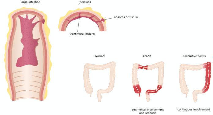 Treating Crohn S Disease Symptoms What You Can Do