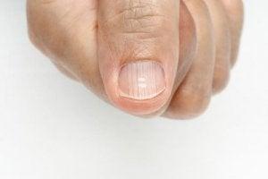 fingernail lines