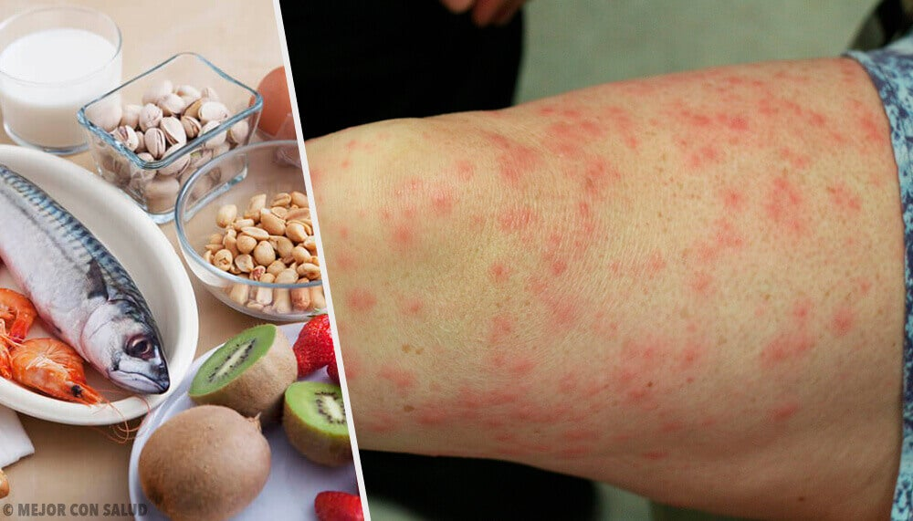 Find Out What the Most Common Food Allergies Are and Good Replacements