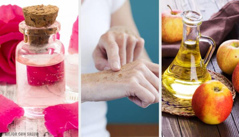 8 Natural Ways to Lighten Sun Spots on Your Hands