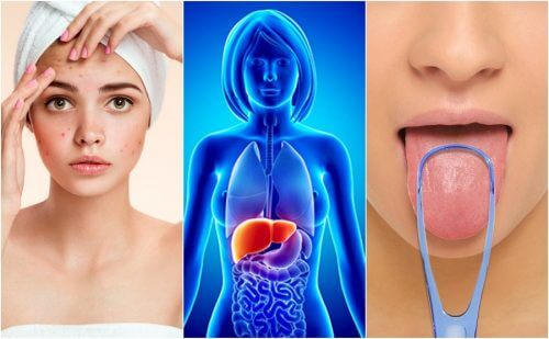 7 Warning Signs that Your Liver Is Overwhelmed with Toxins