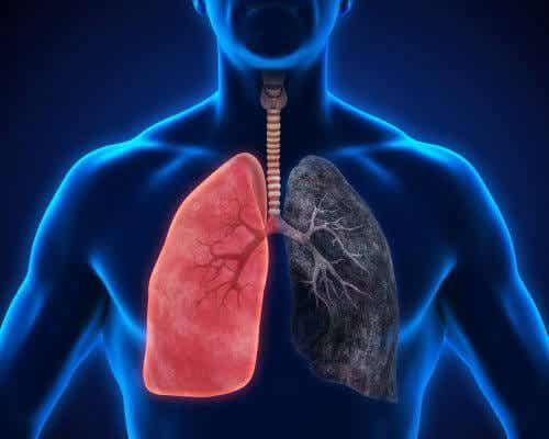 8 Symptoms of Pneumonia that You Shouldn't Ignore