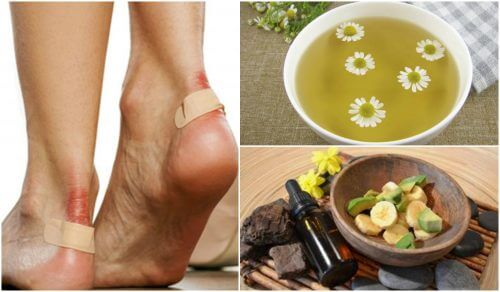 5 Natural Solutions to Alleviate Blisters on Your Feet