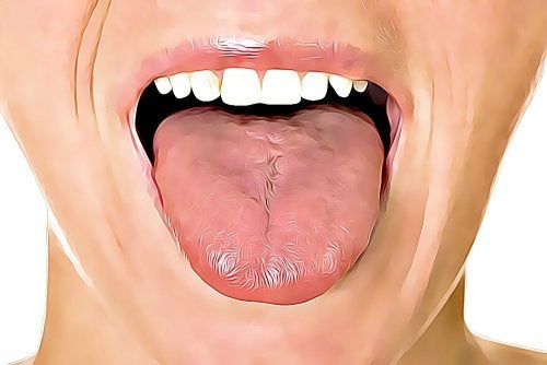 6 Home Remedies for Tongue Ulcers