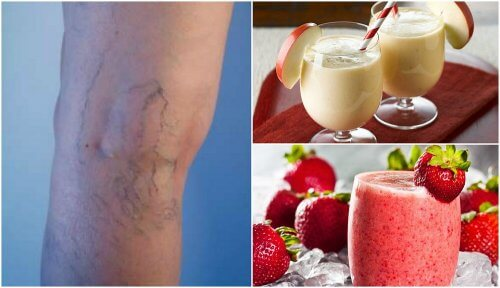 Reduce Varicose Veins and Treat Circulation Problems With Tasty Smoothies!
