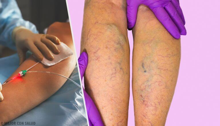 What Are Varicose Veins and How Are They Treated?