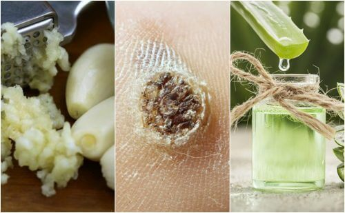 Do You Have Warts? Combat Warts Naturally with These 5 Remedies