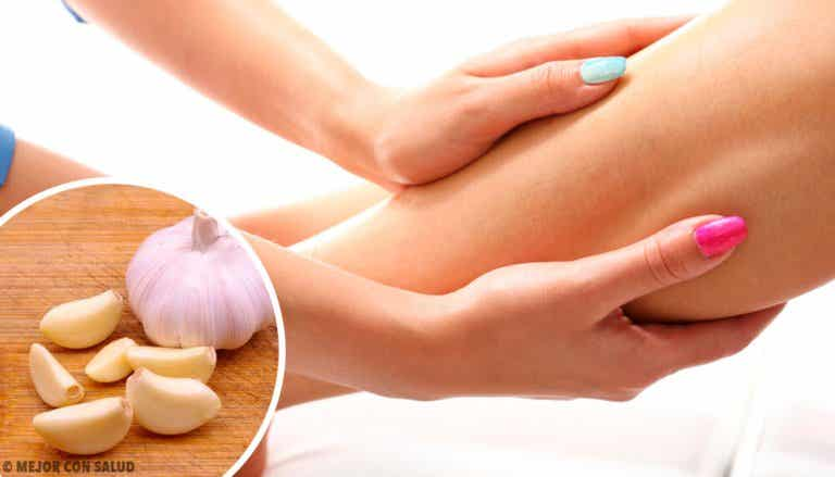Natural Treatments for Fluid Retention