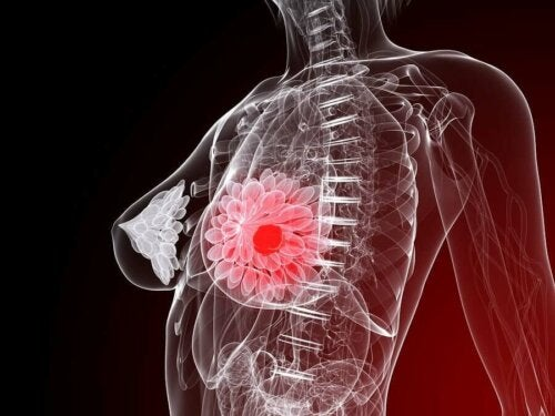 A diagram of a tumor in a woman's breast.