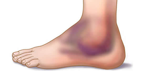 6 Tips To Prevent And Treat Ankle Lesions