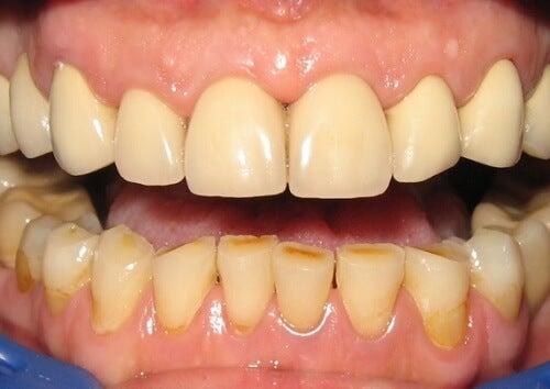 dental infection
