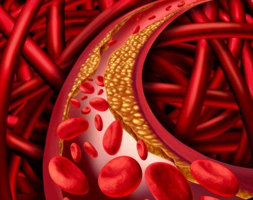 An illustration of hypercholesterolemia.
