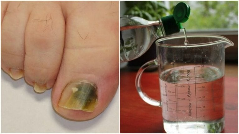 A Natural Alcohol Based Remedy Against Nail Fungus
